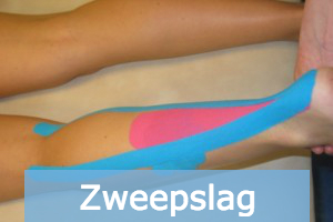 zweepslag medical tape